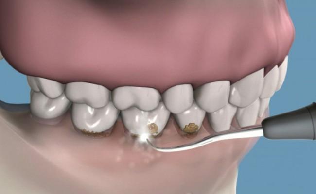 03-limpieza-dental-profilaxis