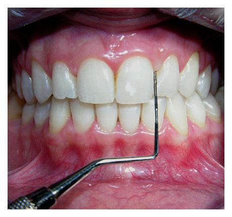 dentadura-saludable1