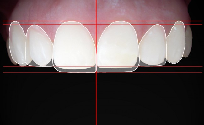 digital-smile-desing-dsd-disec3b1o-disec3b1o-de-sonrisa-digital-maracaibo-clinica-odontologica-imagen-dental