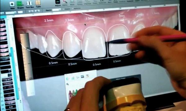 DSD Diseño de Sonrisa Digital