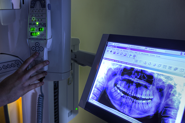 radiologia-dental-1