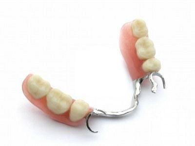 Protesis-dentales-fijas-sobre-implantes