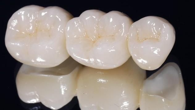 Puente-de-Metal-Porcelana-dentista-fuenlabrada-4
