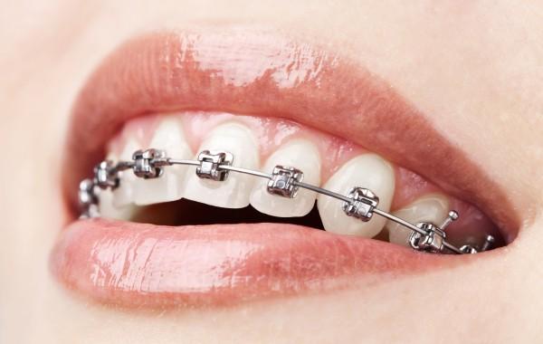 Orthodontics – Brackets