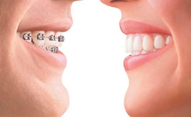 ortodoncia_1