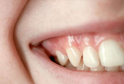 photolibrary-rm-photo-of-teeth-and-smile